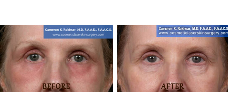 Fraxel: Before and After Treatment Photo - patient 14