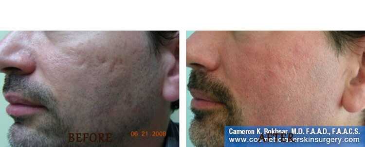Fraxel: Before and After Treatment Photo - patient 7