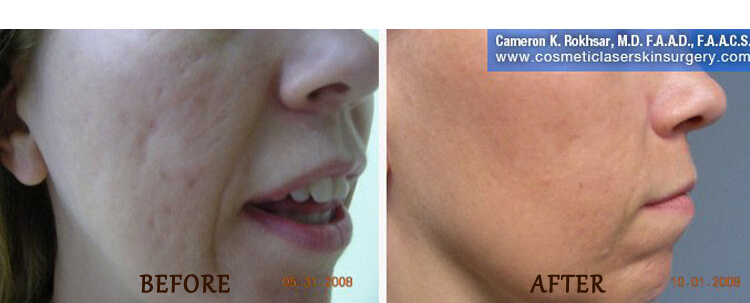 Fraxel: Before and After Treatment Photo - patient 9