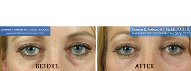 Non Surgical Eyelift: Before and After Treatment Photo - patient 5