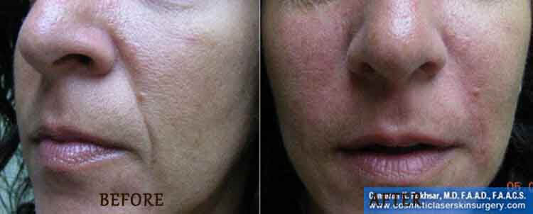 Juvederm: Before and After Treatment Photo - patient 3