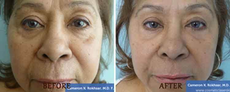 Juvederm: Before and After Treatment Photo - patient 5