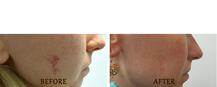 Birth Mark Removal: Before and After Treatment Photo - patient 1