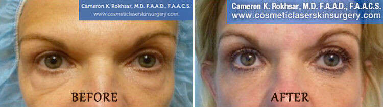 Blepharoplasty: Before and After Treatment Photo - patient 1
