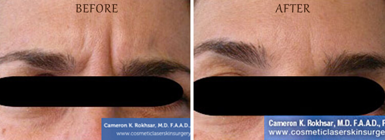 Botox: Before and After Treatment Photo - patient 3