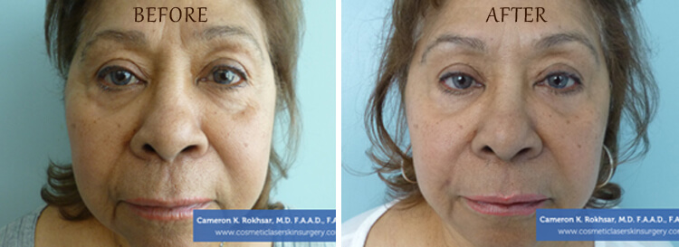 Botox: Before and After Treatment Photo - patient 4