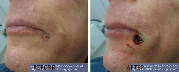 Mohs Surgery: Before and After Treatment Photo - patient 4