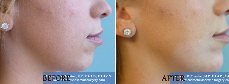 Chin Augmentation: Before and After Treatment Photo - patient 1