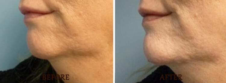 Chin Augmentation: Before and After Treatment Photo - patient 4