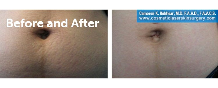 Fraxel Laser Results: Before and After Treatment Photo - patient 10