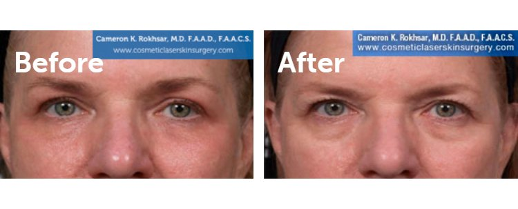 Fraxel Laser Results: Before and After Treatment Photo - patient 11