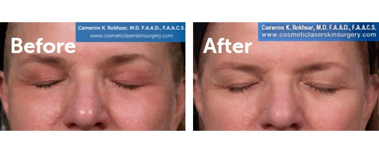 Fraxel Laser Results: Before and After Treatment Photo - patient 12
