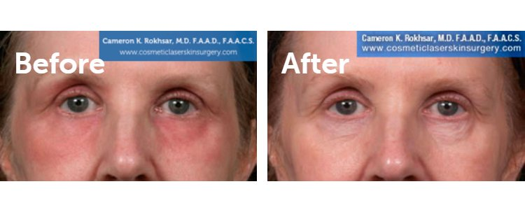 Fraxel Laser Results: Before and After Treatment Photo - patient 13