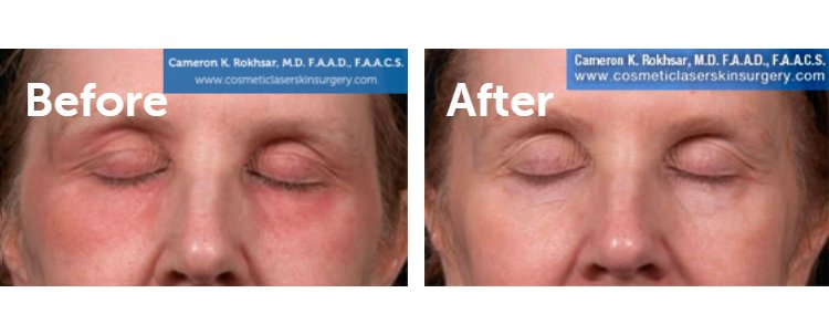 Fraxel Laser Results: Before and After Treatment Photo - patient 14