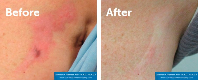Fraxel Laser Results: Before and After Treatment Photo - patient 2