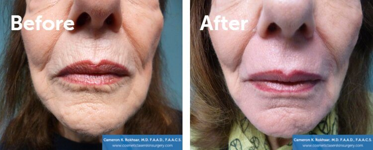 Fraxel Laser Results: Before and After Treatment Photo - patient 3