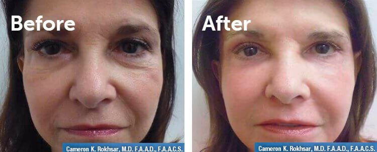 Fraxel Laser Results: Before and After Treatment Photo - patient 4
