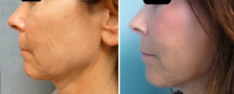 Fraxel Laser Results: Before and After Treatment Photo - patient 5