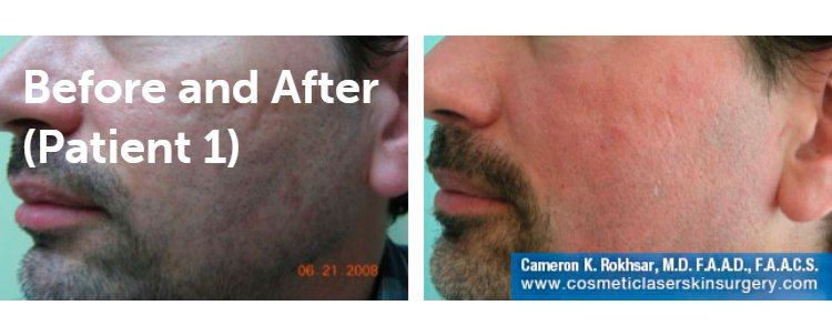 Fraxel Laser Results: Before and After Treatment Photo - patient 6