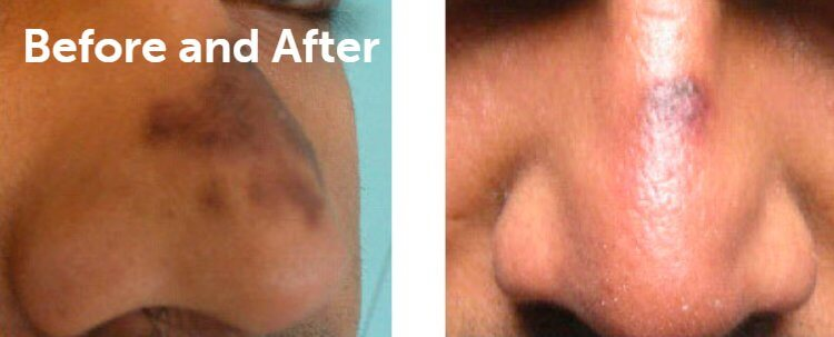Fraxel Laser Results: Before and After Treatment Photo - patient 9
