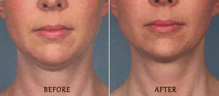 KYBELLA Results: Before and After Treatment Photo - patient 1