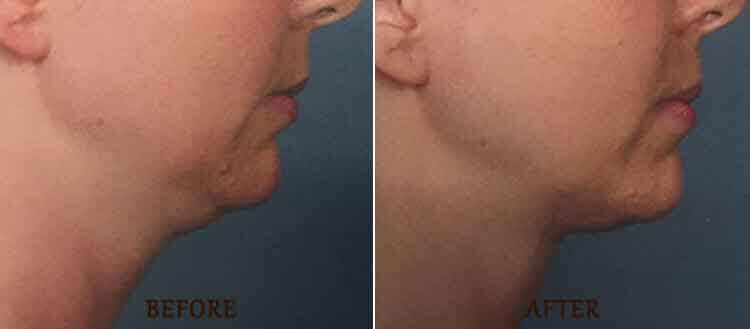 KYBELLA Results: Before and After Treatment Photo - patient 2