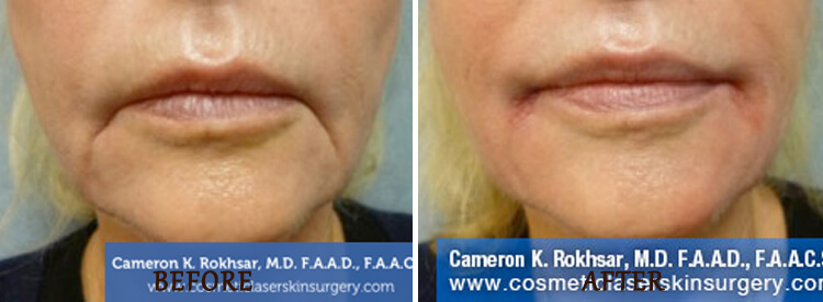 Lip Enhancement: Before and After Treatment Photo - patient 3