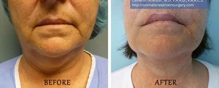 Liposuction: Before and After Treatment Photo - patient 1