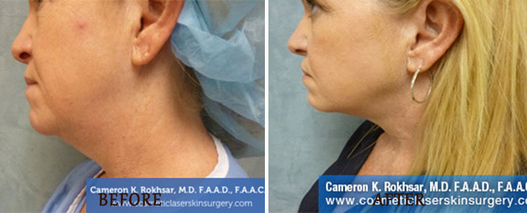 Liposuction: Before and After Treatment Photo - patient 3