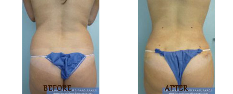 Liposuction: Before and After Treatment Photo - patient 4