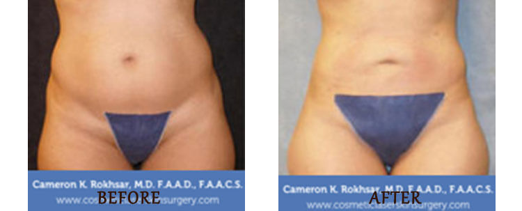 Liposuction: Before and After Treatment Photo - patient 5
