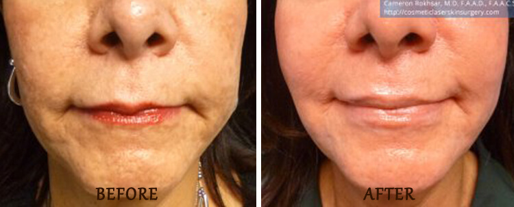 Thermitight: Before and After Treatment Photo - patient 2