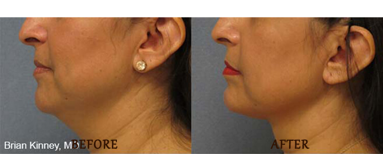 Thermitight: Before and After Treatment Photo - patient 4