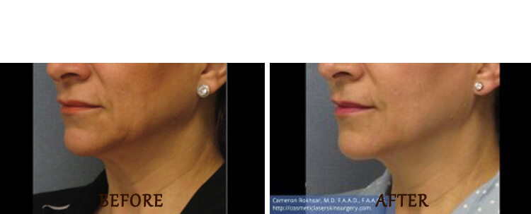 Thermitight: Before and After Treatment Photo - patient 5