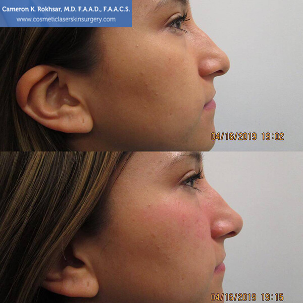 Before and After Treatment Photos: Non Surgical Nosejob - patient 1