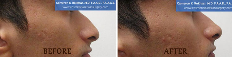 Non Surgical Nose Job New York & Long Island | Rhinoplasty