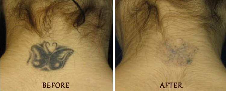 Tattoo Removal: Before and After Treatment Photo - patient 1