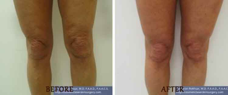 ThermiTight: Before and After Treatment Photo - patient 1
