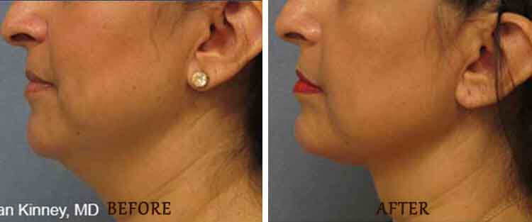 ThermiTight: Before and After Treatment Photo - patient 3