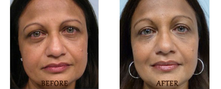 Ultherapy: Before and After Treatment Photo - patient 1