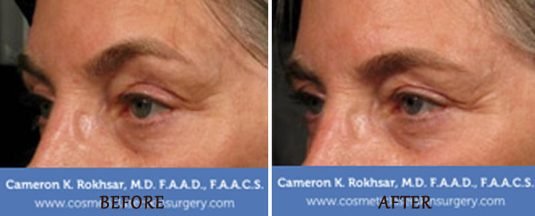 Ultherapy: Before and After Treatment Photo - patient 3