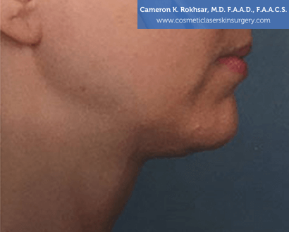 Woman's face, After Kybella Treatment - right side view, patient 2