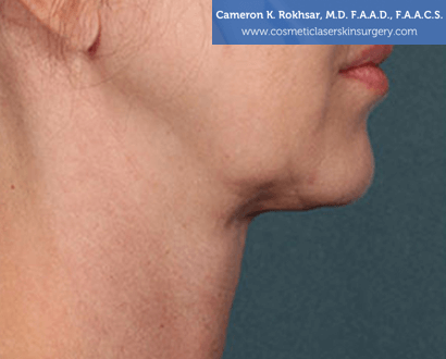 Woman's face, After Kybella Treatment - right side view, patient 1
