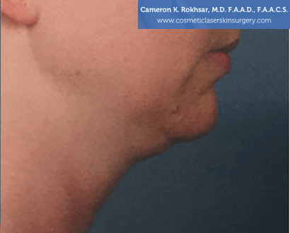 Woman's face, Before Kybella Treatment - right side view, patient 2