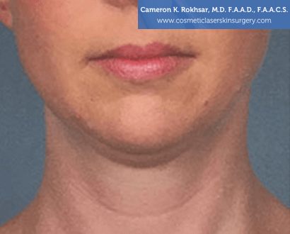 Woman's face, Before Kybella Treatment - front view, patient 2