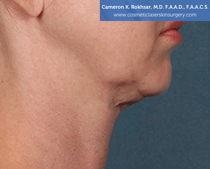 Woman's face, Before Kybella Treatment - right side view, patient 1