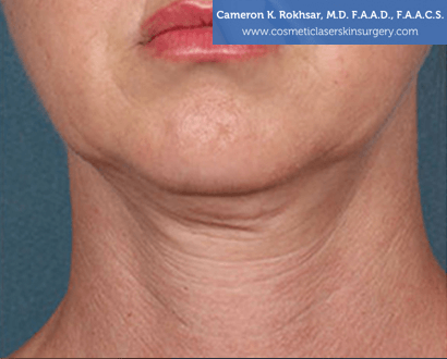 Woman's face, Before Kybella Treatment - front view, patient 1