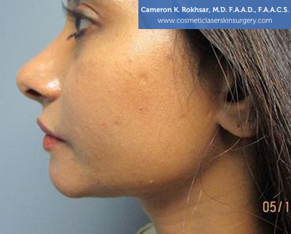 Woman's face, After Chin Job Treatment - left side view, patient 1