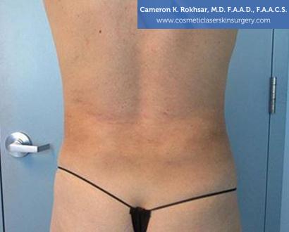 Woman's back, After Liposuction Treatment - back view, patient 2