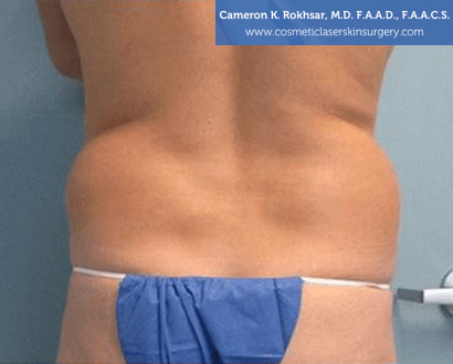 Woman's back, Before Liposuction Treatment - back view, patient 2
